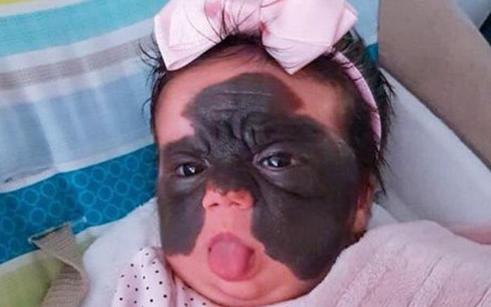 Nhiều bé chào đời với vết bớt trên người, bác sĩ nói có 3 hành vi các bà bầu cần tránh để con không bị như thế - kết quả xổ số kon tum