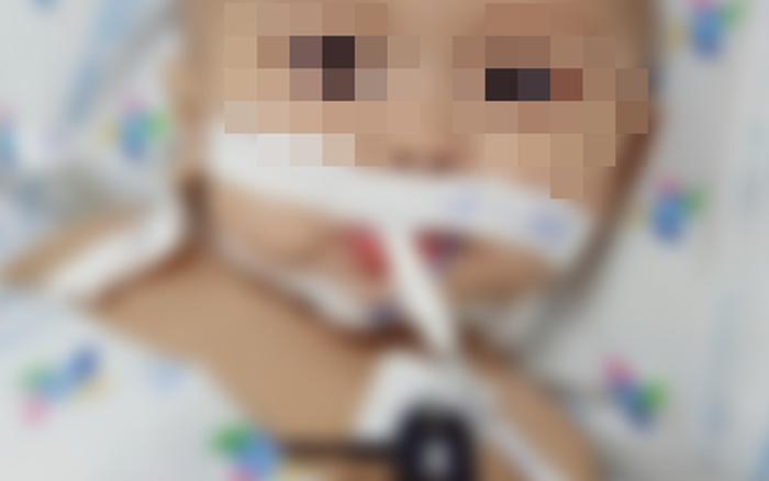 Cứu bé trai 1 tuổi mắc viêm màng não mủ nguy kịch