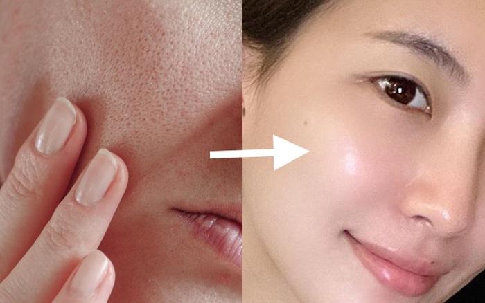 Loại Vitamin siêu dưỡng ẩm dành cho da khô: Khả năng chống già ngang ngửa Vit C mà giá cực mềm, hội chị em nên dùng ngay trong mùa Thu