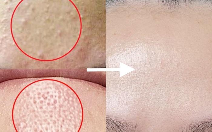 Da khô sạm hay thâm nám đến mấy thì 1 - 2 tuần sau cũng căng mịn, chỉ cần bạn chọn đúng 3 dòng retinol kiêm dưỡng ẩm vi diệu này