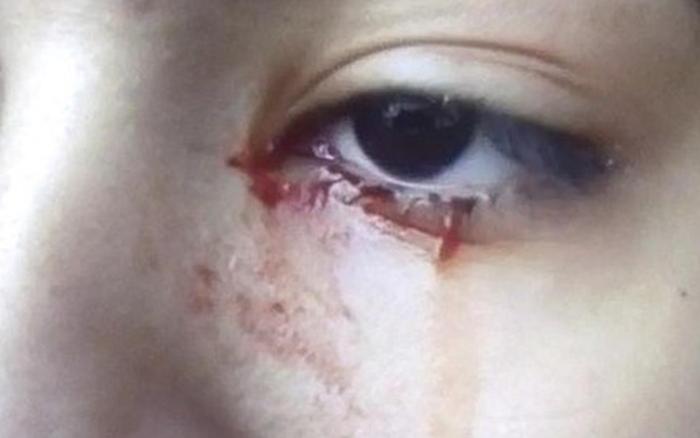 Ca bệnh lạ tại Brazil: thiếu nữ liên tục khóc ra...máu