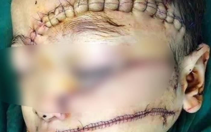 Kinh hoàng: Mẹ bỏ đi được 4 tháng, con trai 5 tuổi bị cha chém nát mặt, khâu 300 mũi