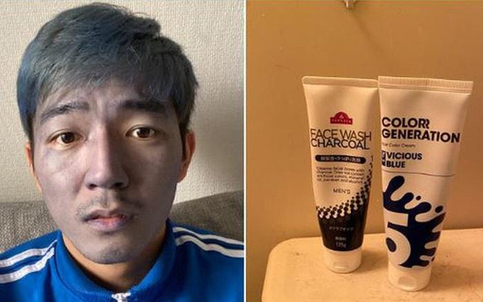 Bôi nhầm thuốc nhuộm tóc lên mặt, chàng trai viết một 'trường ca drama' gây bão internet trong 3 ngày lầm lỡ