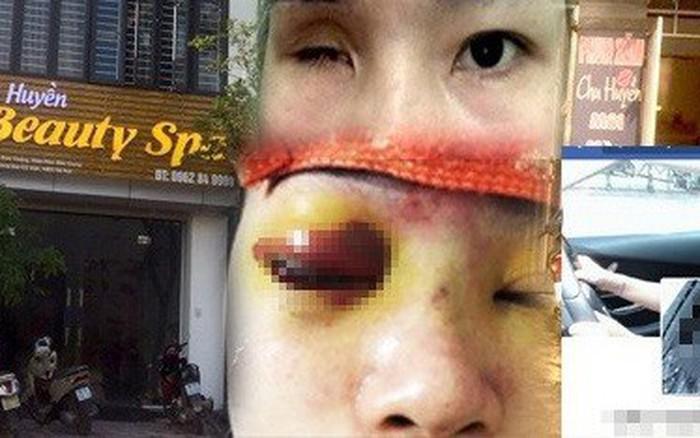 Tiệm spa nâng mũi khiến cô gái bị mù vĩnh viễn sau khi tiêm filler từng bị ...