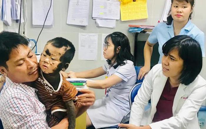 Cậu bé Quảng Ninh có toàn bộ cơ thể từ cổ, lưng, mông, đến chân, tay đều là ...