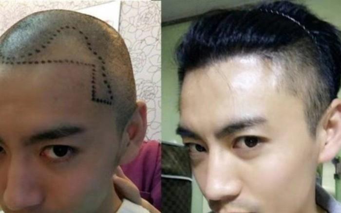 """""""Đại dịch"""" hói đầu tấn công đàn ông Trung Quốc, dịch vụ chăm sóc ..."""