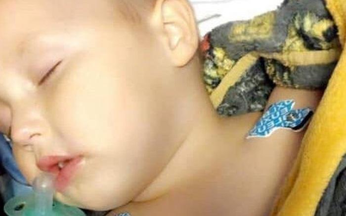Bà mẹ kinh hoàng khi con trai 2 tuổi bỗng nằm bất động sau khi ăn kẹo cao su