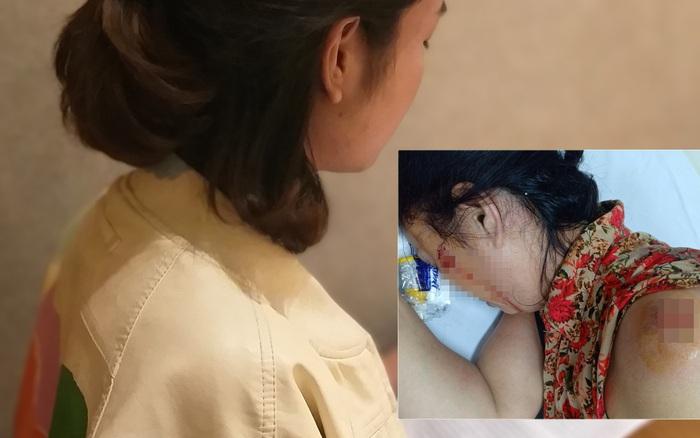 Hà Nội: Người vợ trẻ tố chồng cũ bạo hành, làm nhục cả gia đình suốt ...