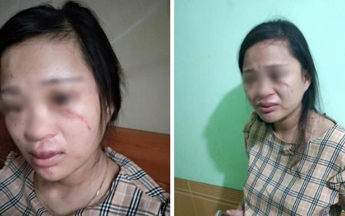 Thai phụ bị mẹ chồng tố theo trai, chồng đánh bầm dập, chảy cả máu mắt chỉ vì mua đôi ...
