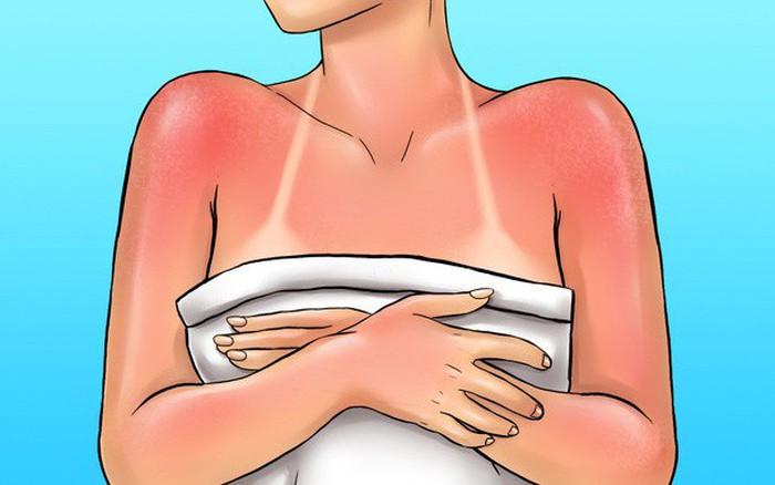 7 cách bảo vệ làn da của bạn trong mọi thời tiết, đẩy lùi tình trạng lão ...
