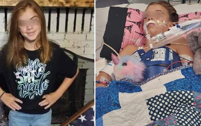 """Bé gái 10 tuổi chết vì nhiễm trùng não do """"amip ăn não"""" tấn ..."""