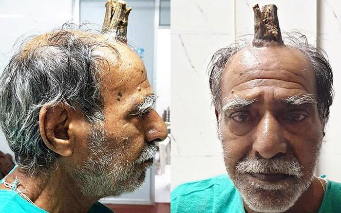 Căn bệnh lạ khiến cụ ông 74 tuổi bỗng dưng mọc thêm sừng trên đỉnh đầu