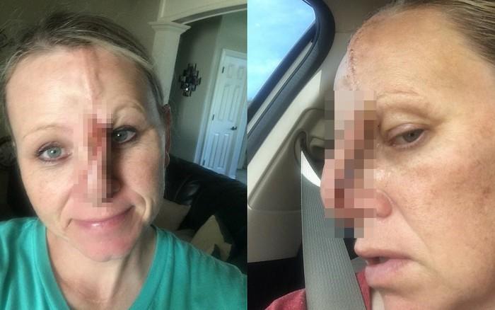 Lạm dụng máy tắm nắng đến 6 lần/tuần dẫn đến ung thư da, bà mẹ 2 con may mắn giữ được mạng sống ...