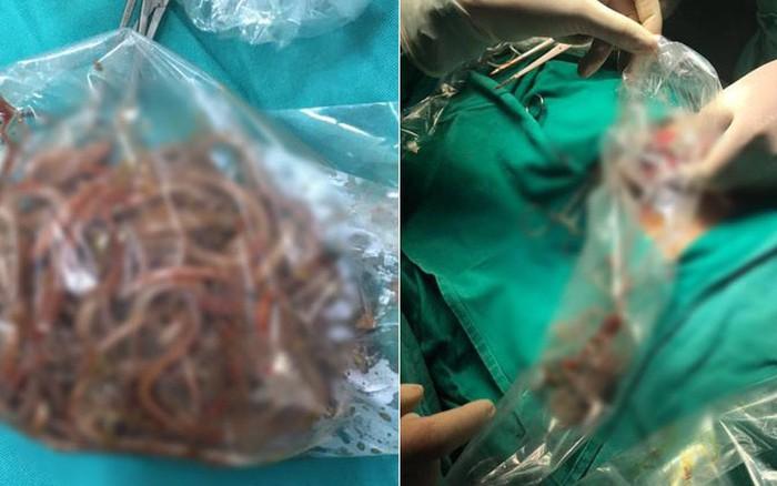 Mổ cấp cứu lấy ra búi giun khoảng 100 con từ bệnh nhân 11 tuổi bị tắc ruột