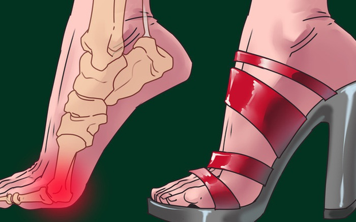 Giày cao gót chị em mê mẩn không chỉ hại bàn chân ...