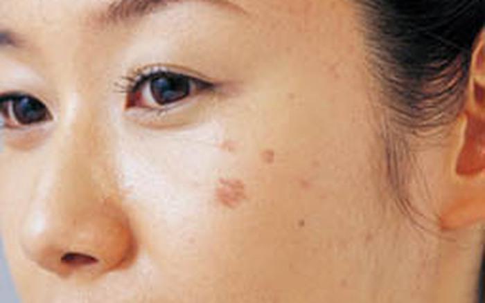 Kết quả hình ảnh cho da mặt bà bầu sạm đi