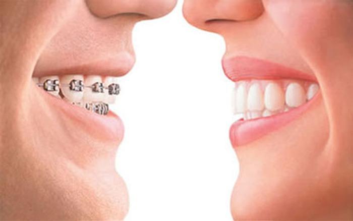 Niềng răng có tác dụng gì? - Niềng răng có ảnh hưởng gì không? 1